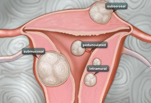 webmd_rf_photo_of_illustration_of_fibroids